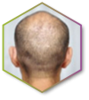 10 Hair Loss
